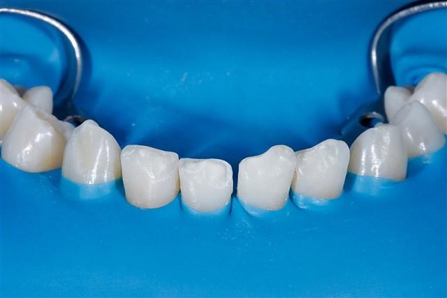 Vorher: Zahnfrakturen nach Trauma.