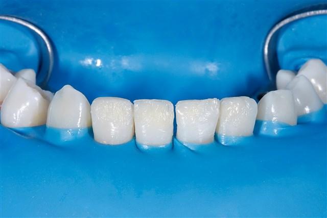 Nachher: Ästhetik und Funktion der Zähne konnte komplett wiederhergestellt werde