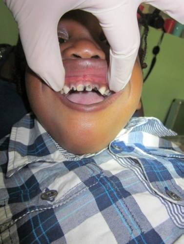 A este joven paciente las caries le habían destruido ya casi todos los dientes.