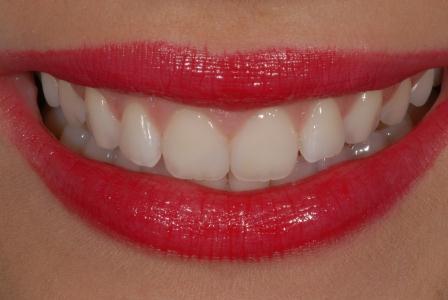 Sourire à belles dents. Esthétique dentaire parfaite avec Amaris (photos : Dr Sa
