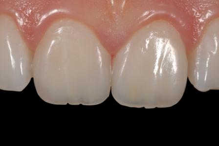 Anterior region restorations produced using Amaris