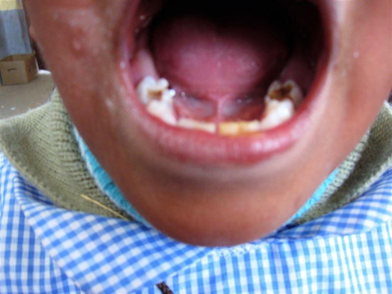 Per molte famiglie è impossibile recarsi dal dentista. Il consumo di cibi dolci