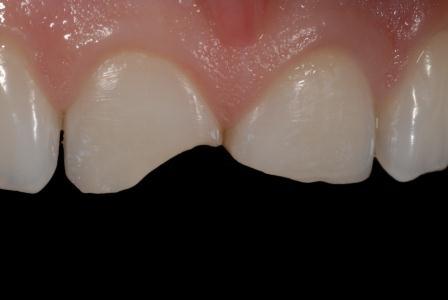 Condizione prima del trattamento: fratture incisali sui denti 11 e 21