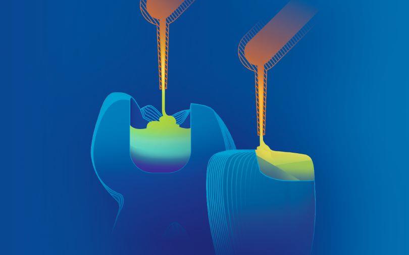 """Mentre la variante """"bulk-fill"""" VisCalor bulk punta sul trattamento semplice e ra"""